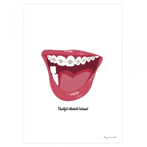 Orthodontic B2ポスター