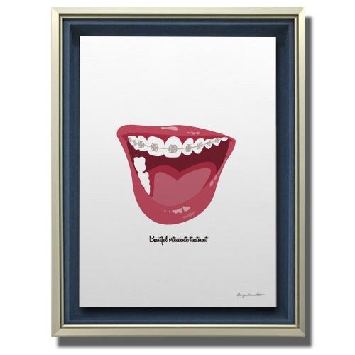 Orthodontic キャンバスプリント(B2サイズ)・立体額入り