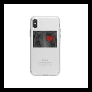 【お取り寄せ】心電図 ブロークンハート iPhoneケース